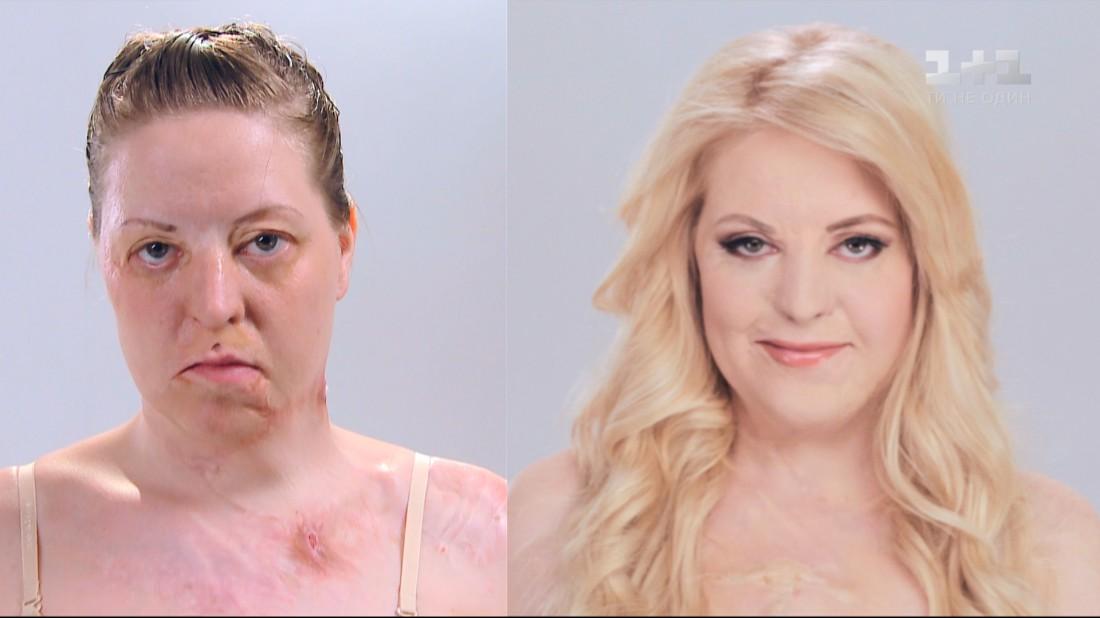 Татьяна Воронина до и после
