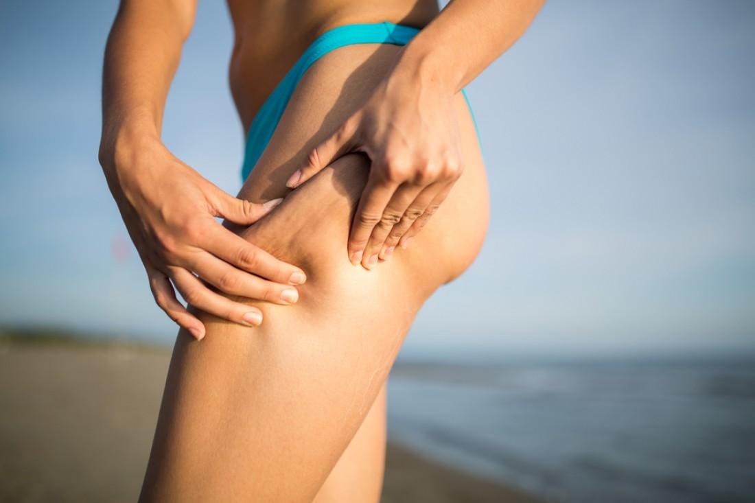 Только тщательный и регулярный уход за кожей поможет забыть о растяжках