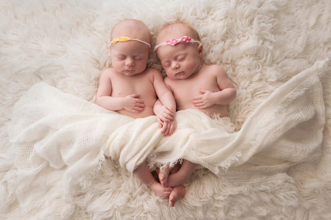 Врачи успешно разделили сиамских  близнецов