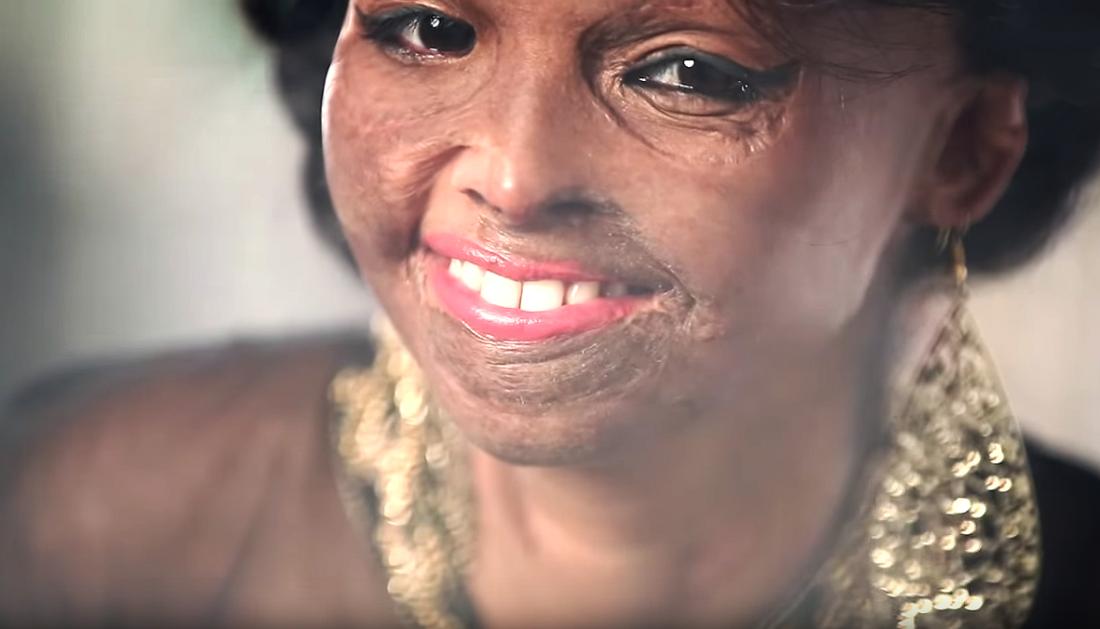 Жертва кислотного нападения стала лицом модного бренда