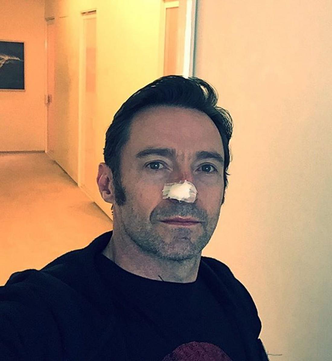 Актер после операции