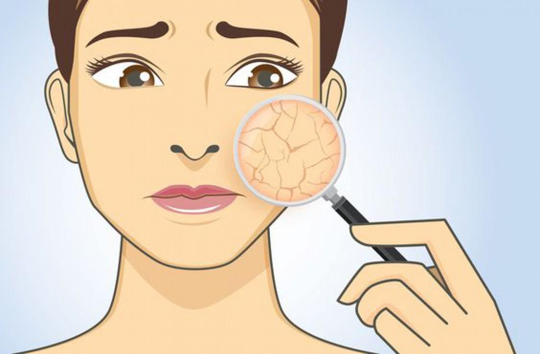 ТОП-5 причин плохой кожи из-за неправильно подобранной косметики