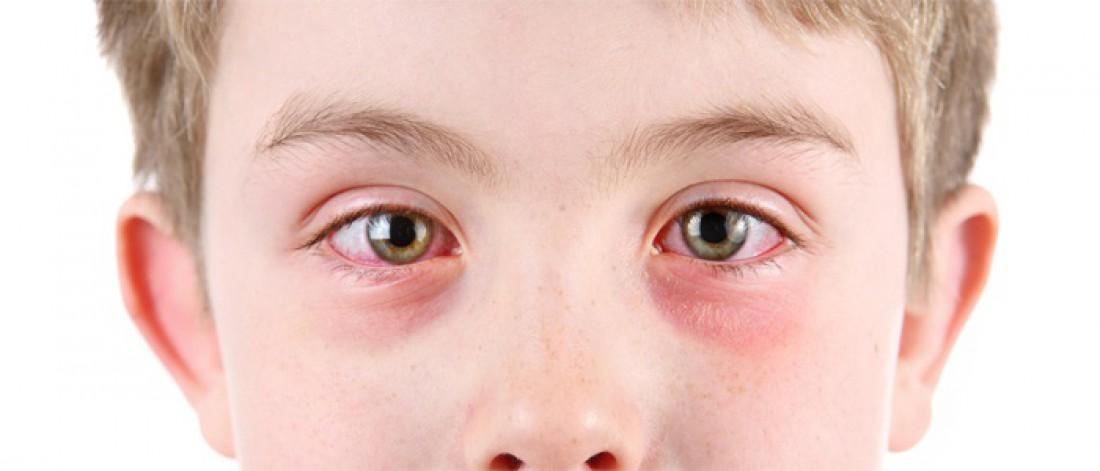 блефарит у детей фото глаза