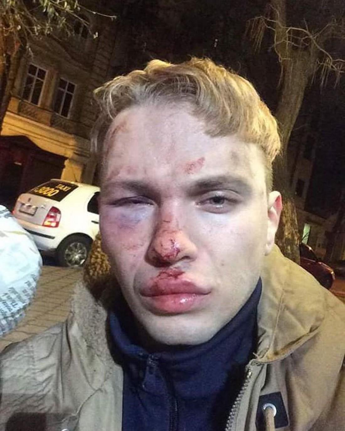 ВОдессе избили иобокрали протеже Ивана Дорна