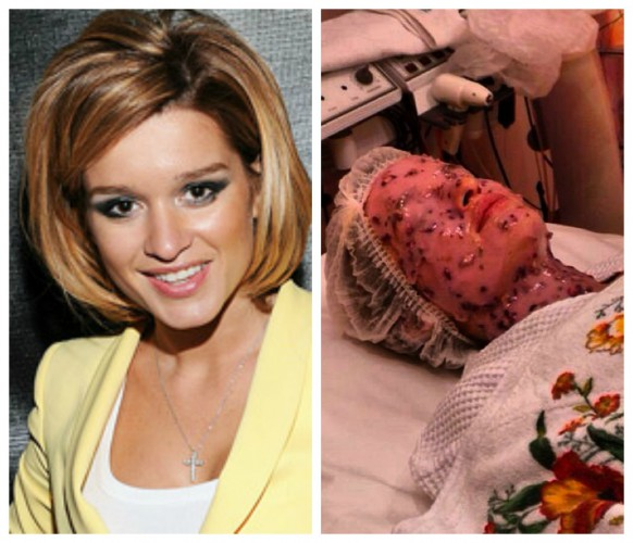 Бородина сделала устрашающую процедуру для лица