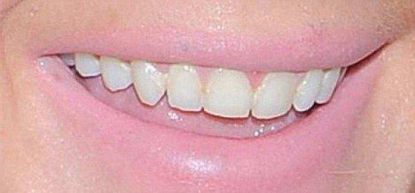До этого момента Лохан радовала публику белоснежной улыбкой