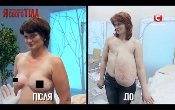 Я соромлюсь свого тiла: Светлана Цыганкова до и после лечения