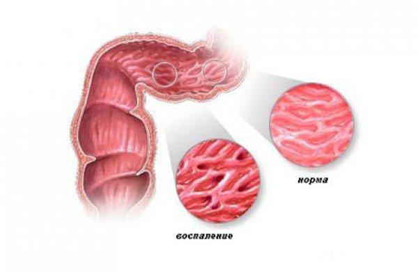 воспаление прямой кишки при сифилисе