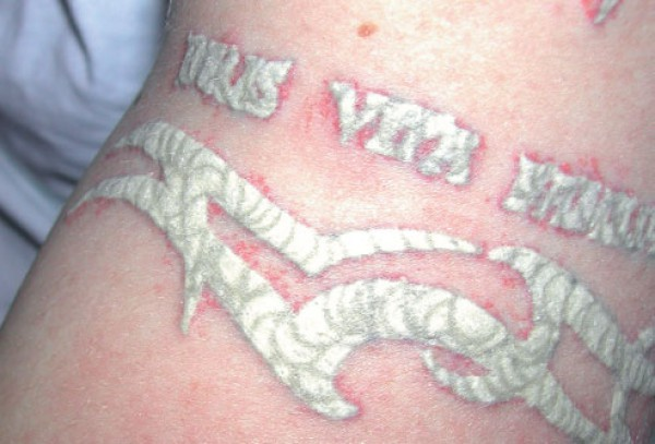 Заражение от татуировок фото