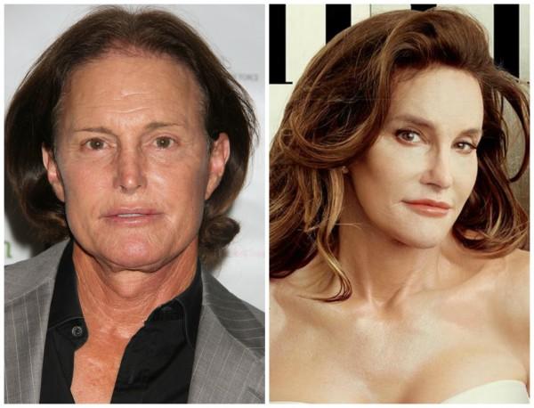 смена пола до операции и после фото