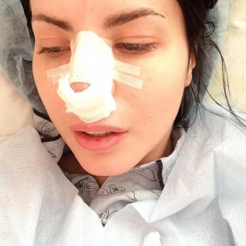 Алена Лоран сделала пластику носа