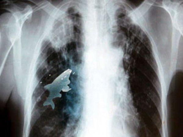 Рентгеновский снимок, на котором отчетливо видно рыбу в легких мальчика