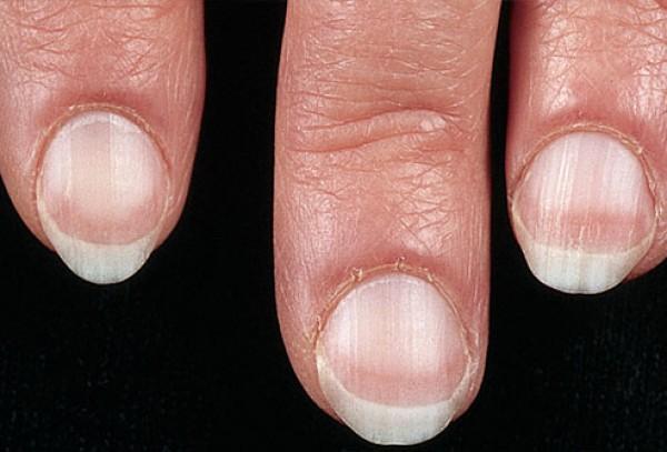 Как определить по ногтям состояние здоровья фото