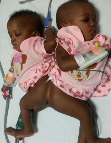 Сначала медики сказали, что разделить детей можно, но одна из них – погибнет