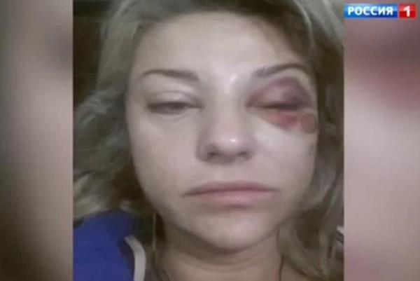 Избитая жена Марата Башарова
