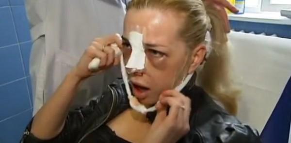 Коррекция кончика носа без операции отзывы