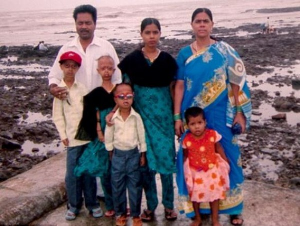 Семья Али: отец Наби (слева), дочь Санида (посредине), мать Разия (справа), дочь Чанда (справа возле матери) и другие дети, больные прогерией