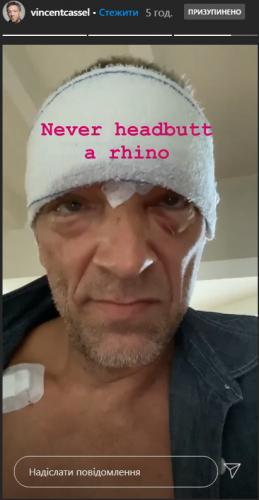 Венсан Кассель попал в аварию: Первое фото актера после ДТП