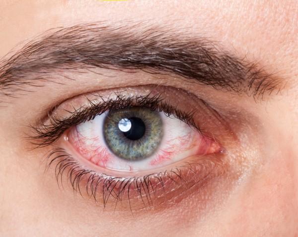 Дергается глаз: почему и как лечить