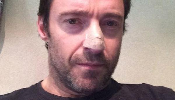 Хью Джекман показал фото после операции