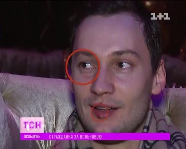 Экс-любовник Вольновой с подбитыми глазом и губой