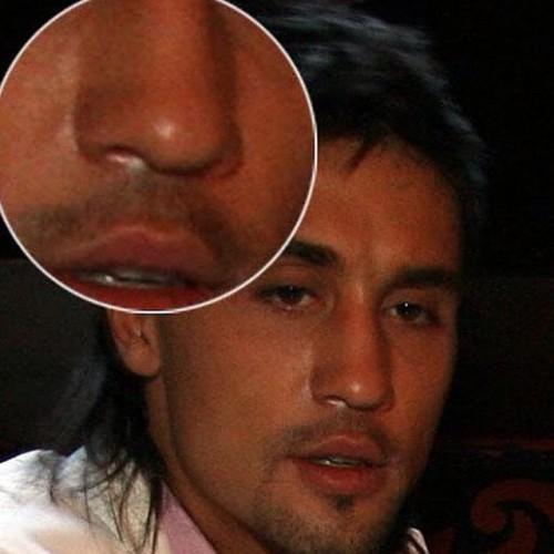 Тимати сделал открытое заявление: Дима Билан – наркоман