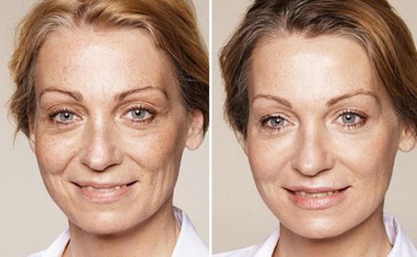 Почему кожа быстро стареет: 5 причин