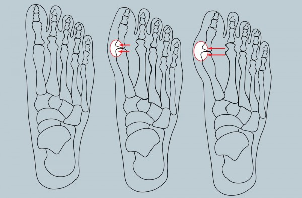 Существует четыре стадии деформации ступни