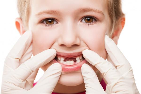 Проблемные зубы у детей