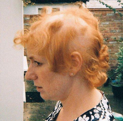 Мэри Корриган потеряла много волос
