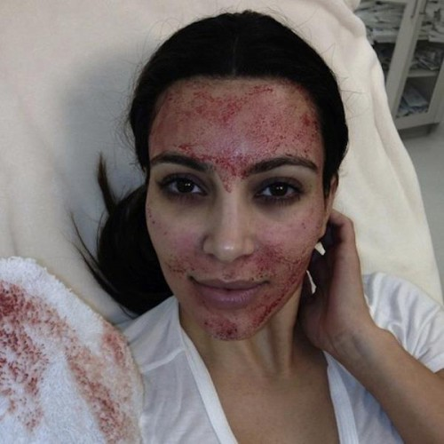 Ким Кардашян решилась на кровавую процедуру