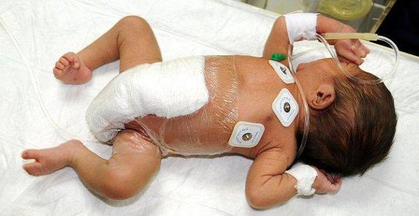 Операция по удалению лишних конечностей пакистанскому ребенку прошла успешно