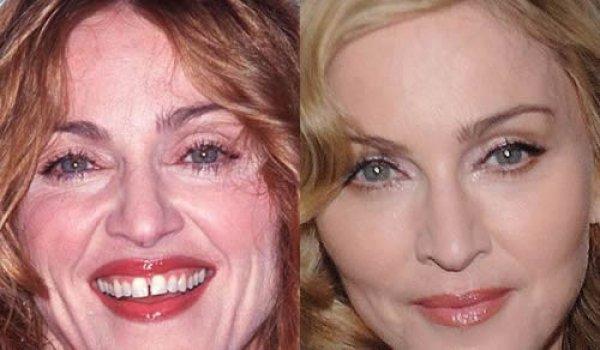 Мадонна до и после ботокса