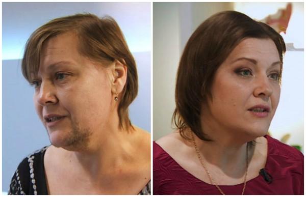 я стесняюсь своего тела результаты фото до и после