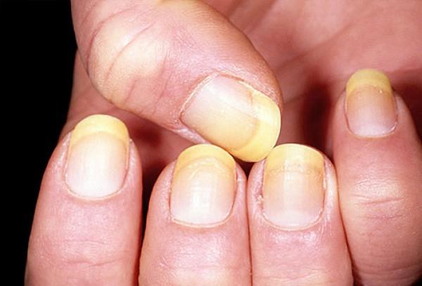 Псориаз ногтей с