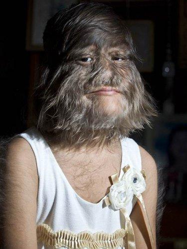 Супатра - одна из 50-ти человек с синдромом Амбраса, который провоцирует рост волос по всему лицу
