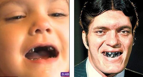 Из-за металлических коронок ребенок стал похож на злодея из кино