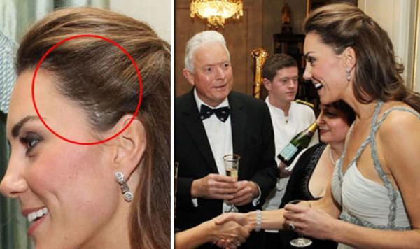 Кейт Миддлтон скрывает огромный шрам на голове