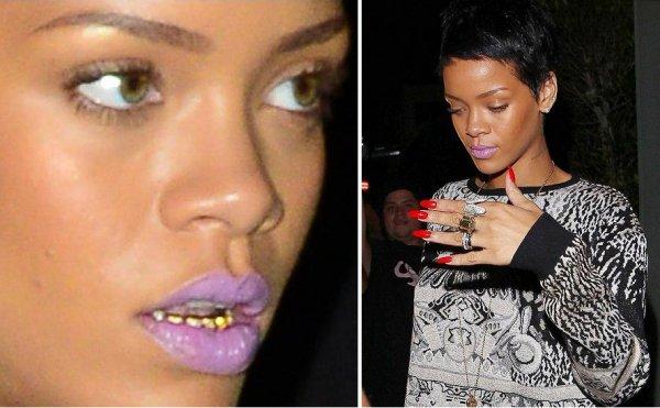 У Рианны золотые зубы