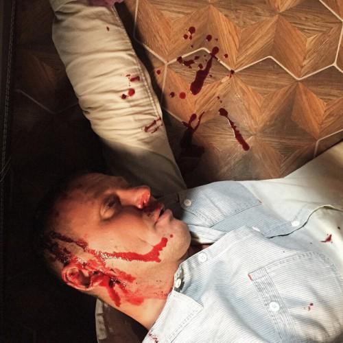Елена Беркова показала снимок окровавленного мужа