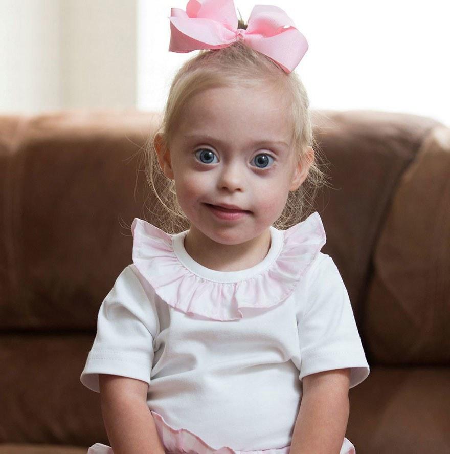 Всемирный день красоты: Болезнь – не помеха детскому счастью