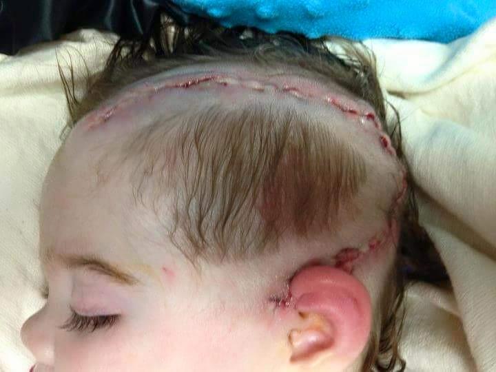 После встречи с папой малышка попала в больницу
