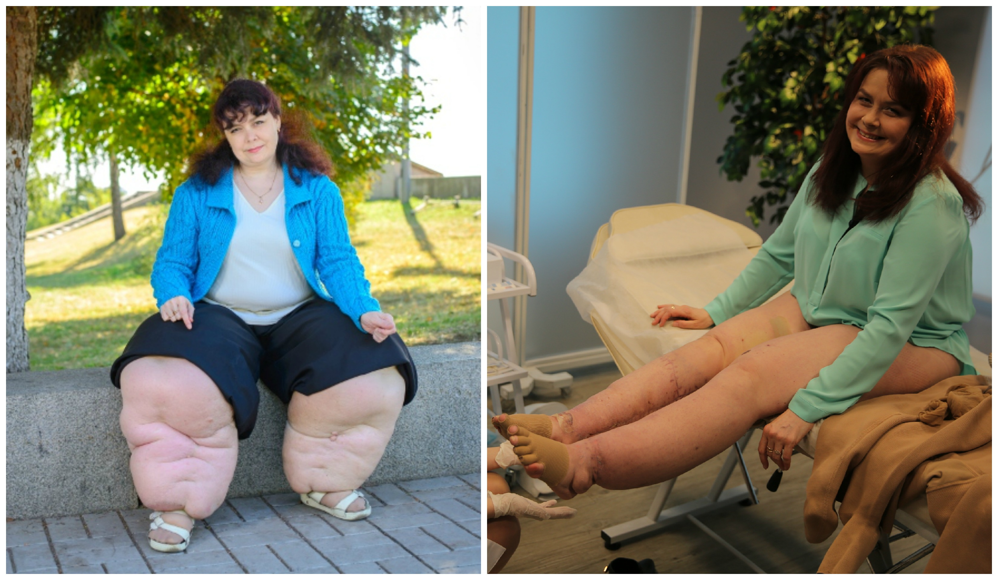 «Я стесняюсь своего тела вот зачем на СТБ искали больных и