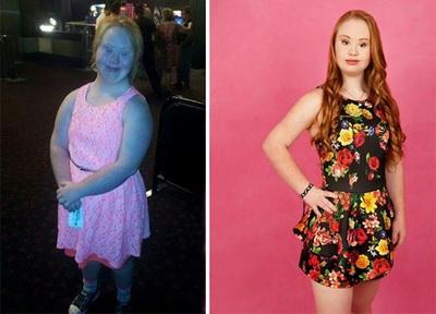 Мэдди удалось справиться с лишним весом ради карьеры в модельном бизнесе