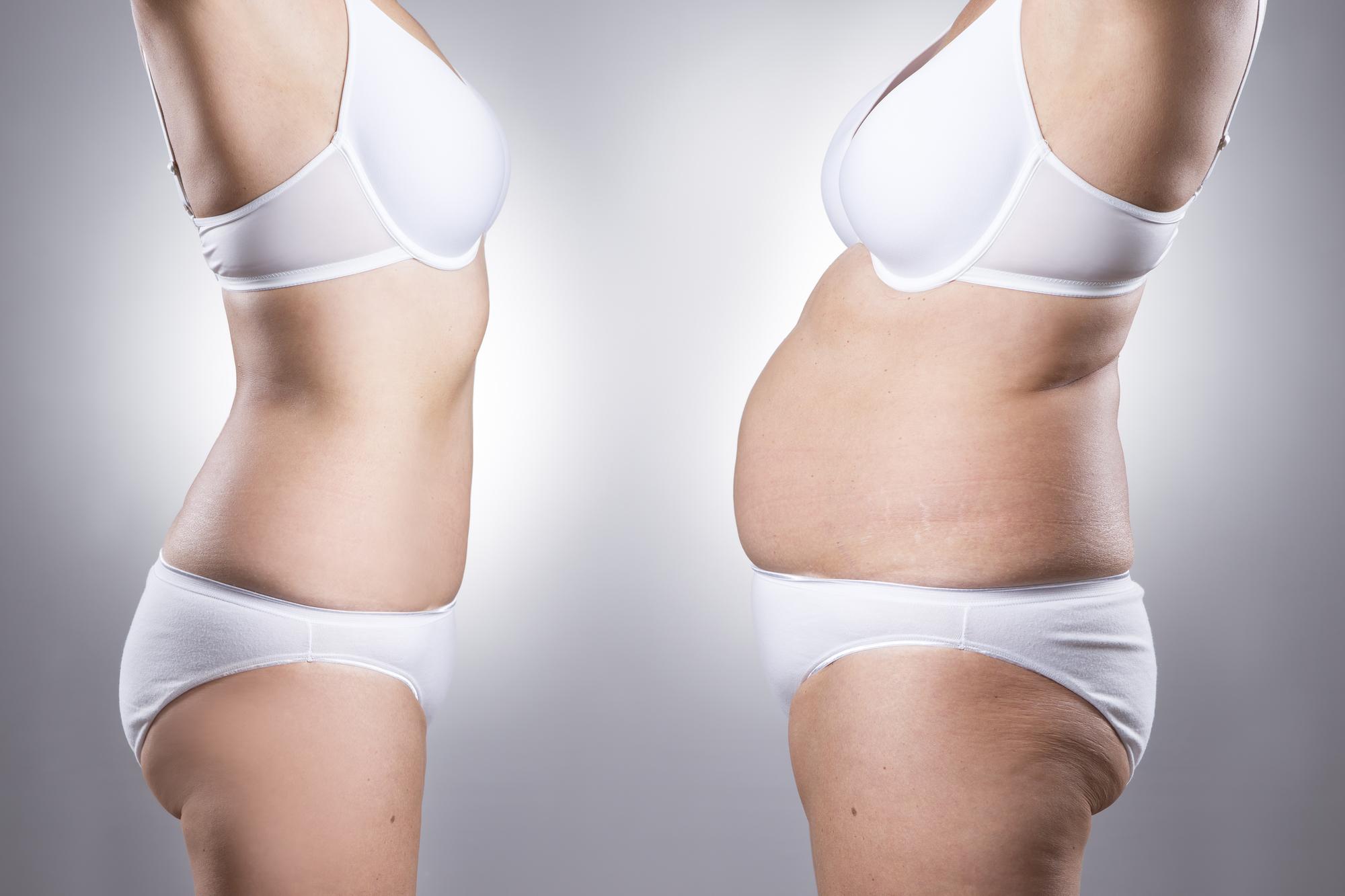 Как лишний вес влияет на здоровье