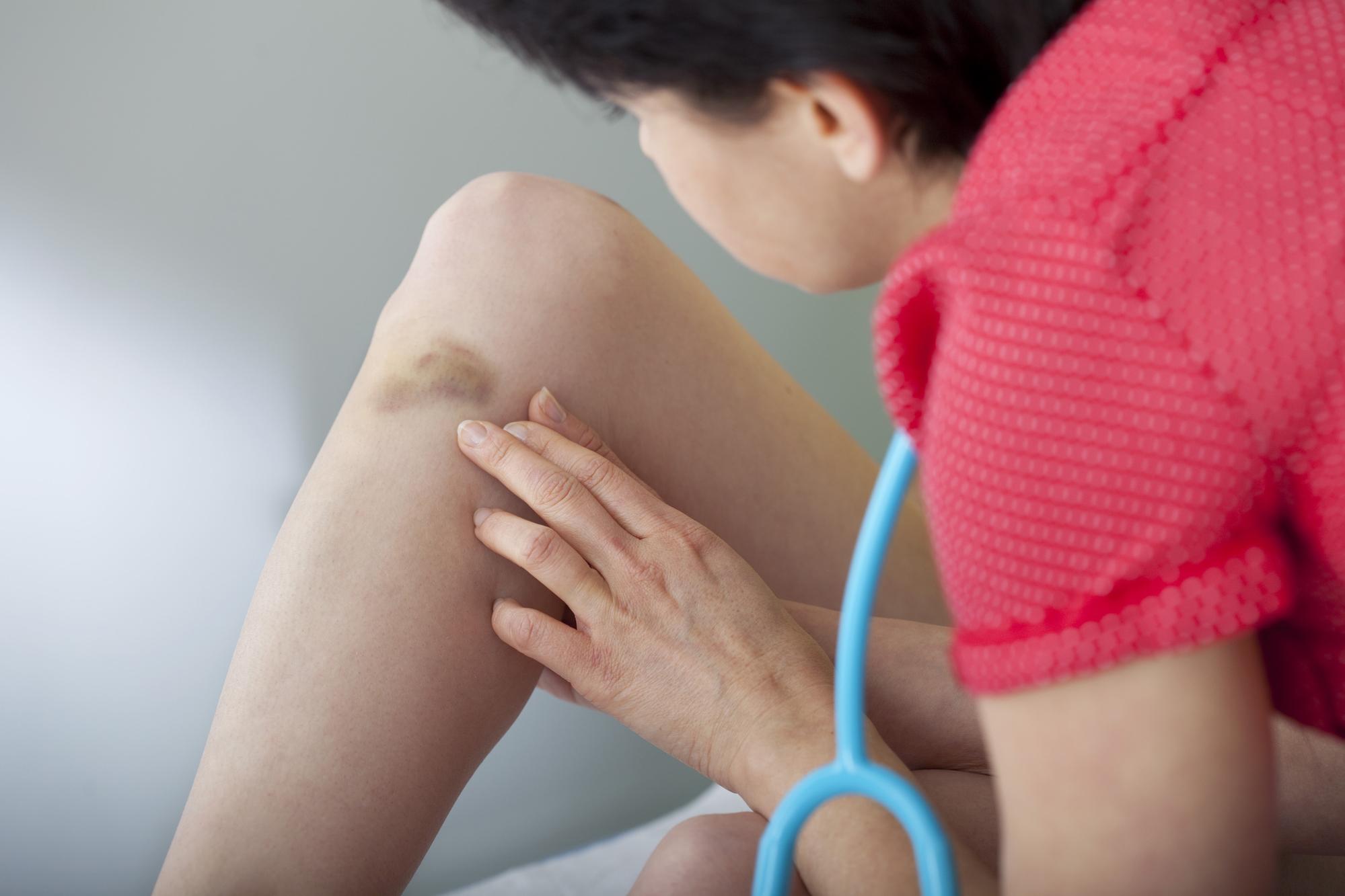 Почему на теле могут самопроизвольно появляться синяки