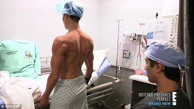 Американец Джастин Джедлика почти двести раз ложился под нож пластического хирурга