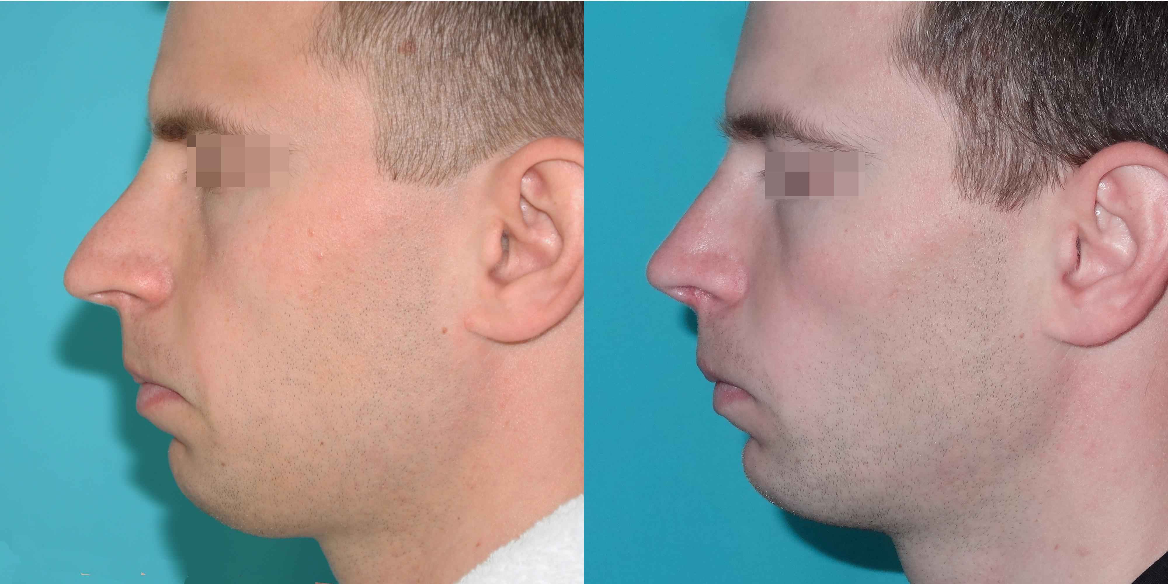 Фото до (слева) и после