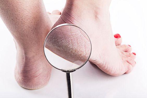 Почему трескаются пятки: причины и способы лечения