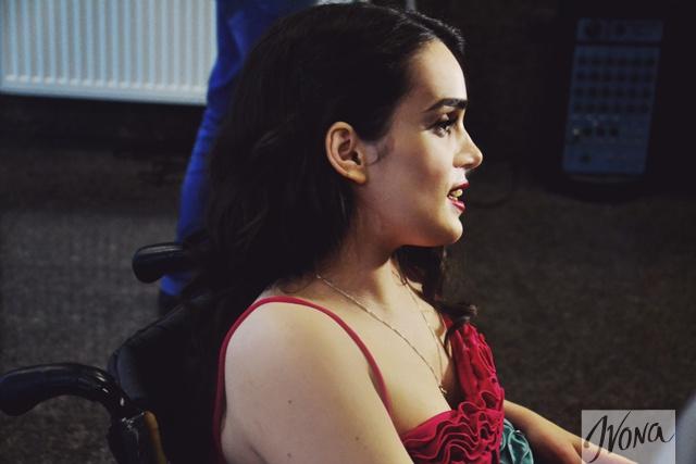 Девушка призналась, что в модельных агенствах ей отказывали только из-за ее инвалидности
